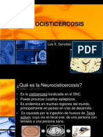 nuerocisticercosis