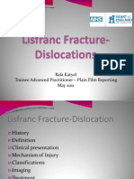 (316235851) Lisfranc Fracture-Dislocations Powerpoint Presentation