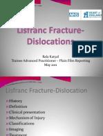 (316235851) Lisfranc Fracture-Dislocations Powerpoint Presentation
