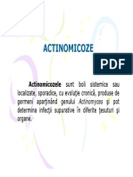 actinomicoze