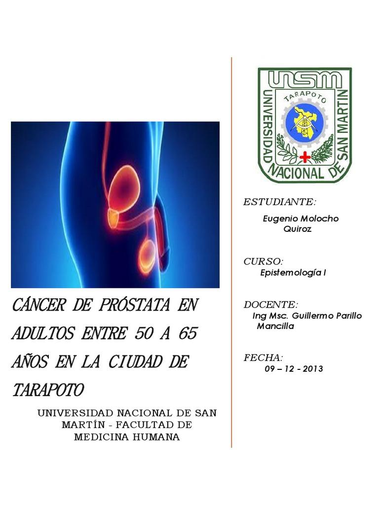 próstata y adenoma cómo saber qué está tratando