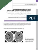 Imagenes Obtenidas Mediante MDCT en Infecciones Del SNC en El Instituto Nacional de Ciencias Neurologicas