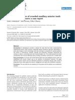 Esthetic Rehabilitation of Crowded Maxillary Anterior Teeth