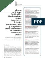 Tiroides Cancer.pdf