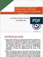 Caso Clinico de Baja Vision
