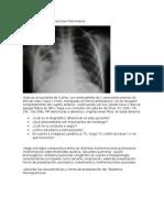 Tarea de Malformaciones Pulmonares