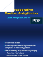 Intraoperative Arrhythmias
