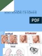 distocias fetales