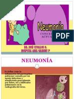 5- NEUMONIA.ppt