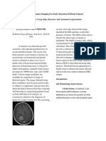 Magnetic Resonance Imaging for Early Detection of Brain Tumour
