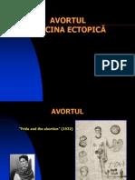 Curs 9 - Avortul. Sarcina Ectopica