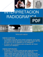interpretacionradiograficasineditar-120531225044-phpapp01.ppt