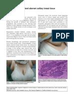 aberrant axillary breast tissue