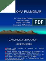 Carcinoma Pulmonar Dr. Orrego 2014-II Usmp