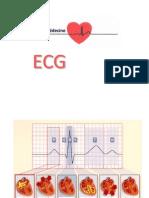 TD ECG.pptx