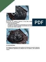 CARAS de La Placenta