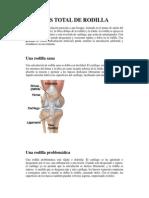 Protesis Total de Rodilla Pacientes