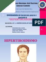 Hipertiroidismo Fisio
