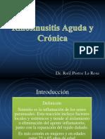 Rinosinusitis Aguda y Cronica