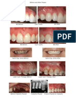 before and after photos for website