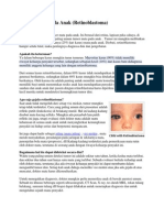 Kanker Mata Pada Anak