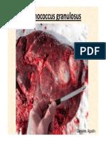 Echinococcus granulosus [Modo de compatibilidad].pdf