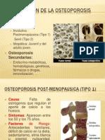 Clasificacion de La Osteoporosis