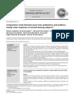 Brazilian Journal of Otorhinolaryngology - Comparative Study Between Pure Tone Audiometry A