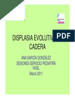 Displasia Evolutiva de Cadera