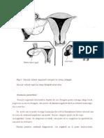 Studiu Sarcina Extrauterina an 2