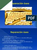 Reparación ósea