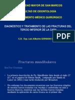 Copia de Fracturas Mandibulares Unmsm Cirugia V
