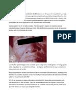 Epidemiologia Lupus Wrk