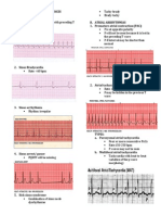 Sinus Rhythm Disturbances
