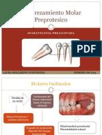 2. Enderezamiento Molar Preprotesico Final