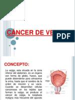 Cancer de Vejiga Arreglado