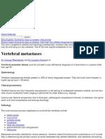 Vertebral metastases | Radiology Reference Article | Radiopaedia.org
