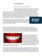Article   Blanqueamiento Dental (2)