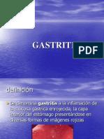 2878360 Gastritis