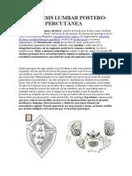 Artrodesis Lumbar Postero