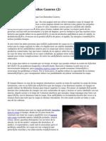 Article   Caspa Remedios Caseros (2)