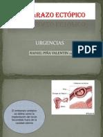 EMBARAZO ECTÓPICO.pptx