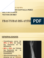 FRACTURA DE ANTEBRAZOO.pptx