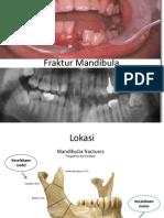 Fraktur Mandibula-Leher.ppt