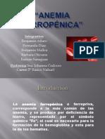 Anemia Ferrica.pptx
