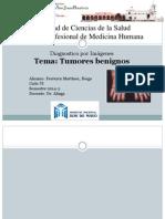 tumores benignos.pptx