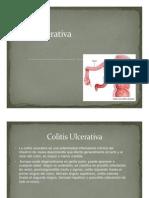 Colitis ulcerativa (2) - copia.pdf