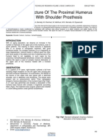 Complex Fracture of the Proximal Humerus Treated With Shoulder Prosthesis