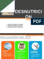SEMINARIO FINAL-DESNUTRICION-DRALETURIA.ppt