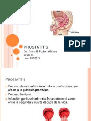 prostatitis ppt Afala tabletta a prostatitis árából